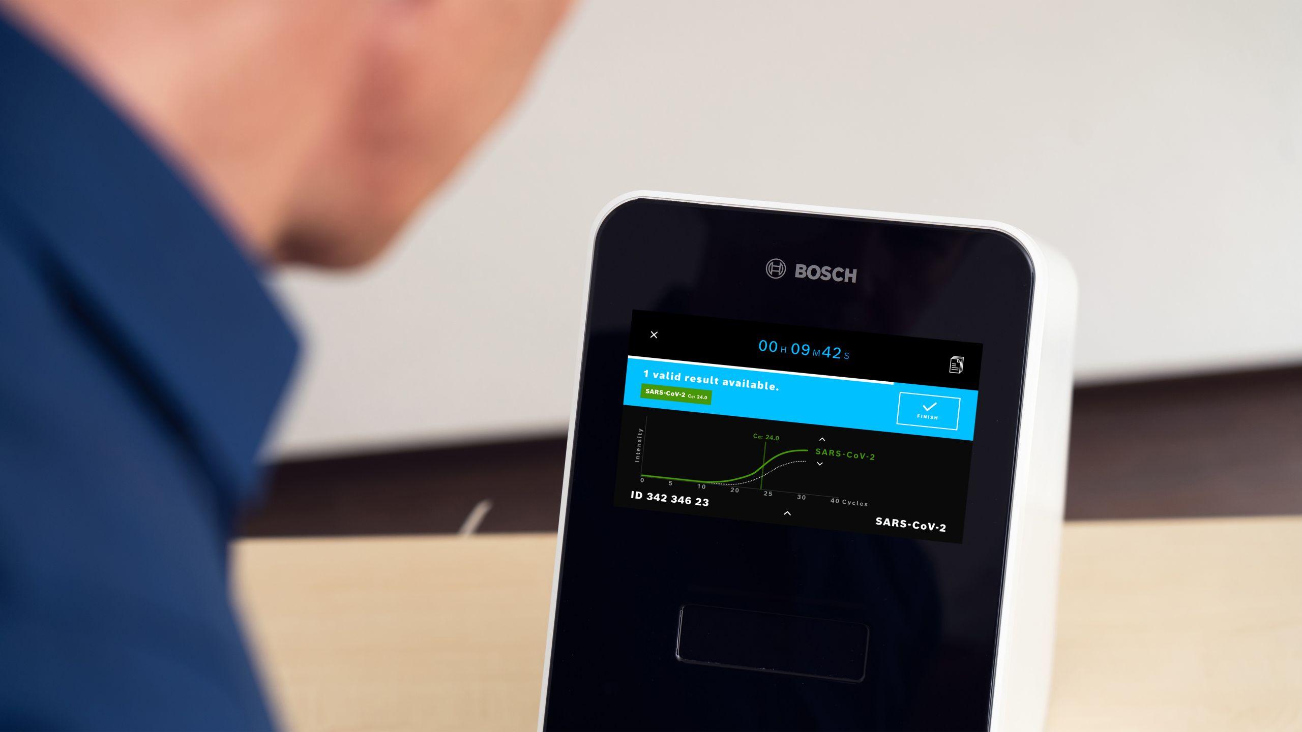 CES 2021: Bosch представила продукты для здоровья, жизни и мобильности (824fb764 Vivalytic screen with new software scaled)