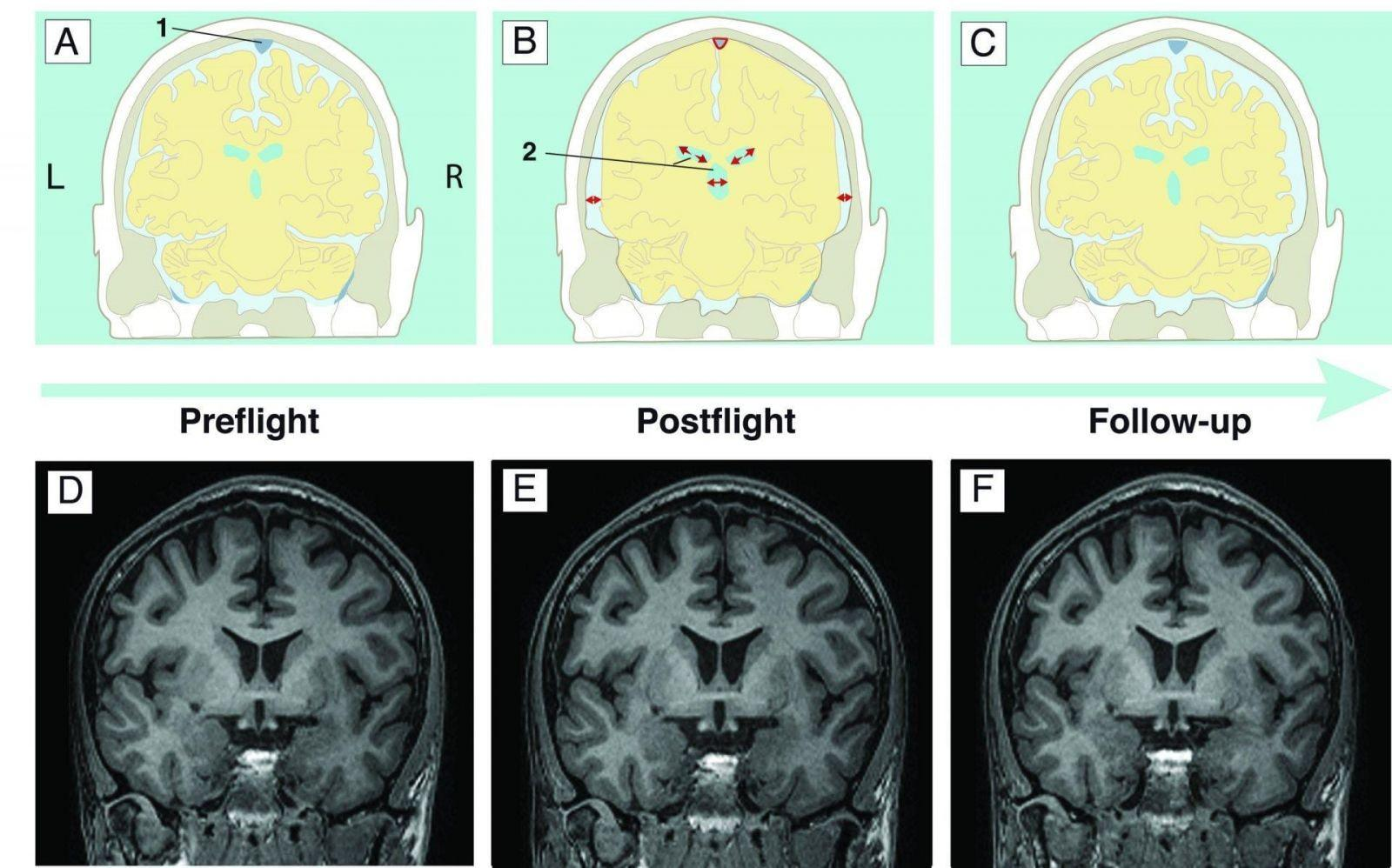 Исследование: Длительные космические полеты приводят к увеличению желудочков мозга (5cd1681ac909a)